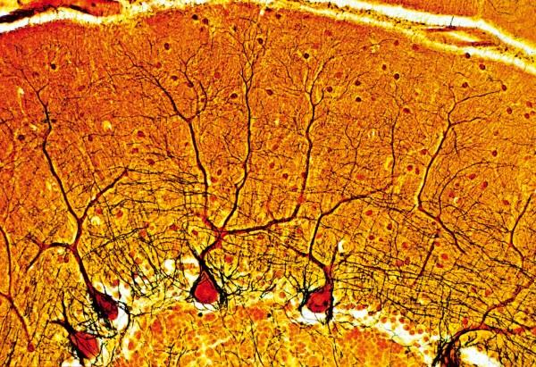 Purkinjezellen im kleinhirn der katze ma f lms lehrmittel